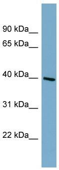 Western blot - ST8SIA6 antibody (ab99067)