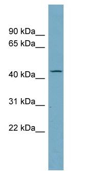 Western blot - AADACL4 antibody (ab99068)