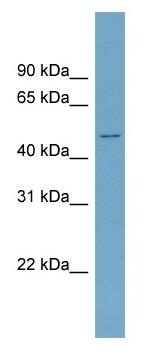 Western blot - Activin Receptor Type IIB antibody (ab99070)