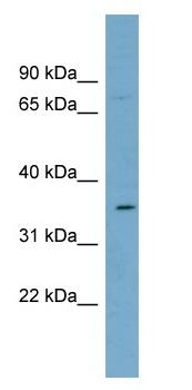 Western blot - SLC39A2 antibody (ab99071)