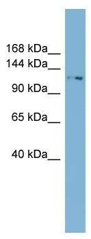 Western blot - TTC17 antibody (ab99079)