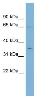 Western blot - YTHD1 antibody (ab99080)