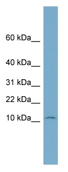 Western blot - NOLA3 antibody (ab99084)