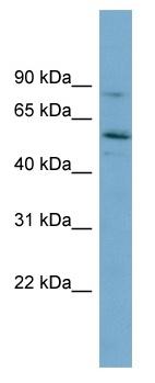 Western blot - SNTG1 antibody (ab99085)