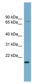 Western blot - PDZRN4 antibody - N-terminal (ab99089)