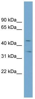 Western blot - BIGM103 antibody (ab99099)
