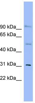 Western blot - SLC25A25 antibody (ab99100)