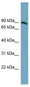 Western blot - SLC6A14 antibody (ab99102)