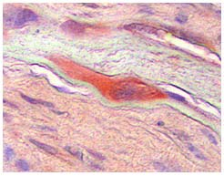 Immunohistochemistry (Formalin/PFA-fixed paraffin-embedded sections) - Anti-MCSF antibody (ab99110)