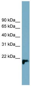 Western blot - C1orf93 antibody (ab99114)