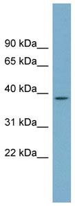 Western blot - SDSL antibody (ab99115)