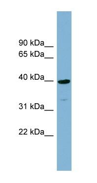 Western blot - CRTAP antibody (ab99120)