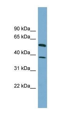Western blot - HEPACAM antibody (ab99122)