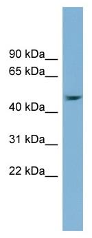 Western blot - Anti-SERPINB1 antibody (ab99124)