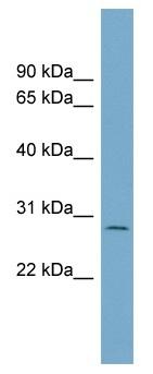 Western blot - C1orf96 antibody (ab99126)