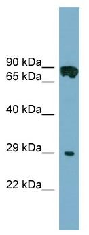 Western blot - CYB5D1 antibody (ab99127)