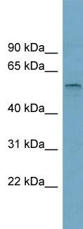 Western blot - SLC22A15 antibody (ab99130)