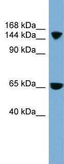 Western blot - SLC4A5 antibody (ab99131)