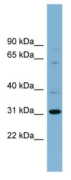 Western blot - HS747E2A antibody (ab99136)