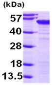 SDS-PAGE - MAGEA4 protein (ab99138)