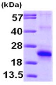 SDS-PAGE - eIF5A2 protein (ab99140)