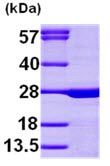SDS-PAGE - Calcium binding protein P22 (ab99141)