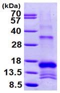 SDS-PAGE - SLPI protein (ab99142)