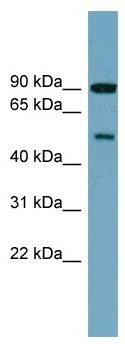 Western blot - PI 4 Kinase type 2 beta  antibody (ab99143)
