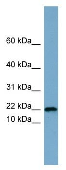 Western blot - PRR13 antibody (ab99150)