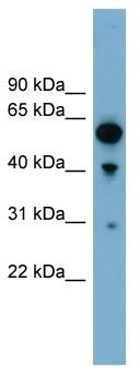 Western blot - ARHGAP15 antibody (ab99153)
