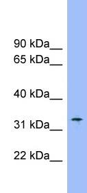 Western blot - Slc25a1 antibody (ab99168)