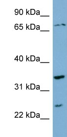 Western blot - PDP2 antibody (ab99170)