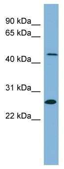 Western blot - Anti-UPB1 antibody (ab99185)