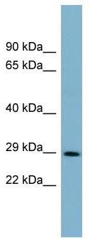 Western blot - DCUN1D1 antibody (ab99195)