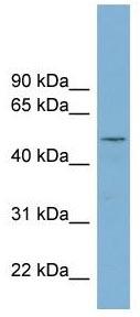 Western blot - RNPEPL1 antibody (ab99197)