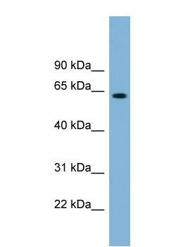 Western blot - SLFN12 antibody (ab99198)