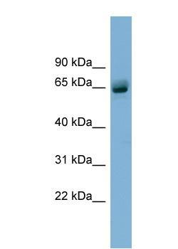 Western blot - SLFN12 antibody (ab99200)