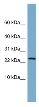 Western blot - LRRC20 antibody (ab99202)