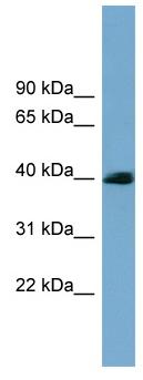Western blot - SASH3 antibody - N-terminal (ab99203)