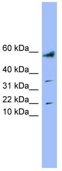 Western blot - LYRM1 antibody (ab99207)