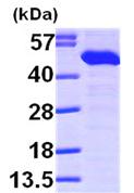 Western blot - TXNDC4 protein (ab99218)