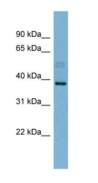 Western blot - MARCH8 antibody (ab99229)