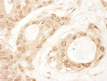 Immunohistochemistry (Formalin/PFA-fixed paraffin-embedded sections) - C1orf55 antibody (ab99237)