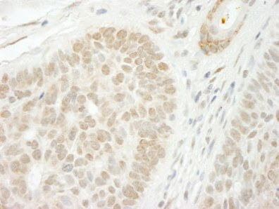Immunohistochemistry (Formalin/PFA-fixed paraffin-embedded sections) - CSTF2T antibody (ab99256)