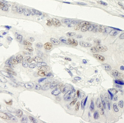 Immunohistochemistry (Formalin/PFA-fixed paraffin-embedded sections) - Symplekin antibody (ab99257)