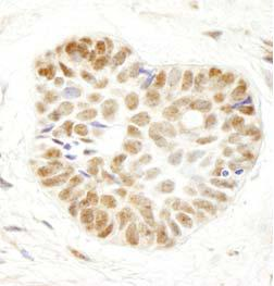 Immunohistochemistry (Formalin/PFA-fixed paraffin-embedded sections) - WDR79 antibody (ab99260)