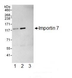 Immunoprecipitation - Importin 7 antibody (ab99272)
