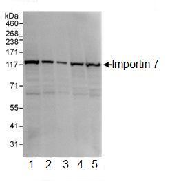 Western blot - Importin 7 antibody (ab99273)