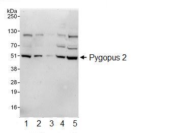 Western blot - Pygopus 2 antibody (ab99274)