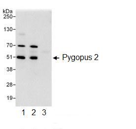 Immunoprecipitation - Pygopus 2 antibody (ab99274)